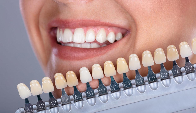 Estética dental en Calahorra