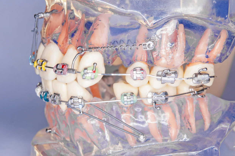 microimplantes ortodoncia en La Rioja