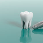 implante dental en Calahorra