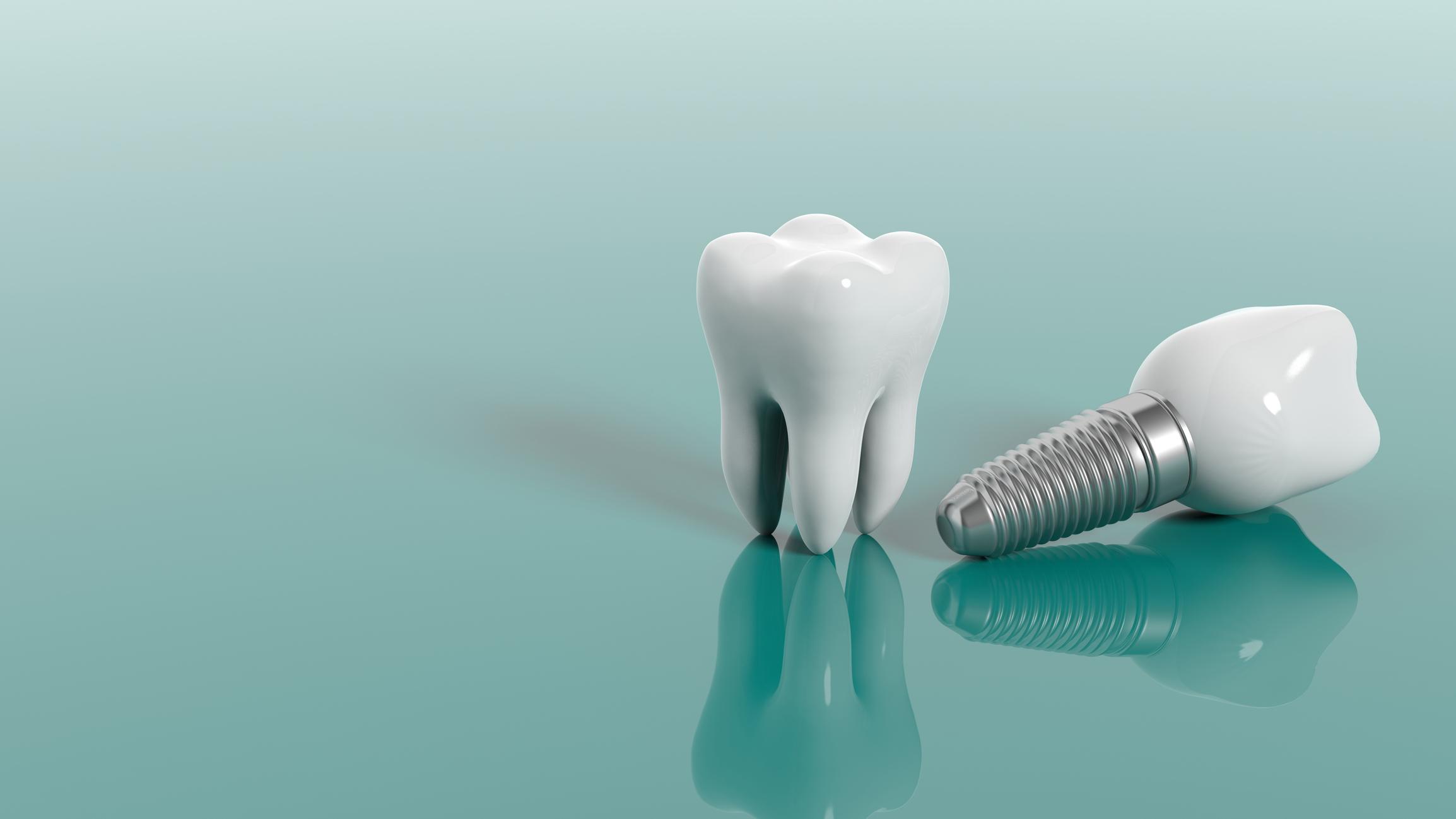 implante dental en Calahorra